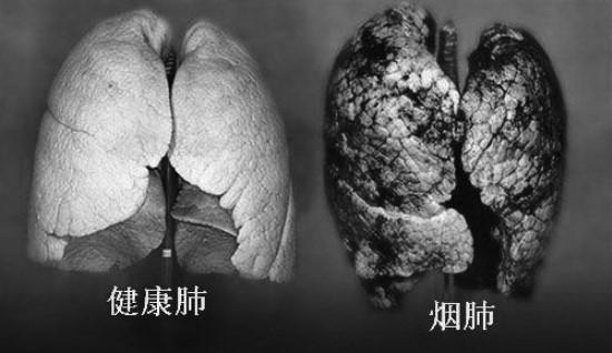 扁康徐孝锡院长剖析烟民得肺纤维化疾病的危害