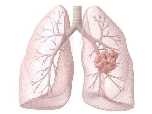扁康提醒家有老人,如何预防、治疗肺炎侵袭!