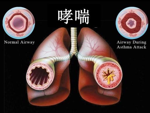 """呼吸系统疾病的秘密在于""""清肺"""""""